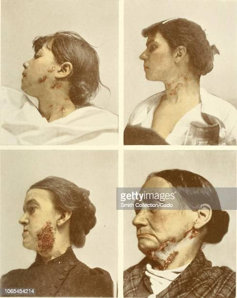 697a69aa5a4a Engravings of four females infected with scrofula mycobacterial cervical  lymphadenitis of the cervical lymph nodes from