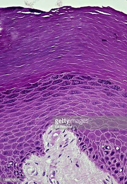STRATIFIED SQUAMOUS EPITHELIUM. Epidermis (Keratinized, Thick, Human, 100x). Shows layers in epidermis: stratum corneum, stratum granulosum, stratum spinosum & stratum basale (basal layer of epidermis). And dermis (lighter) below.