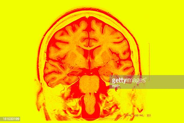Epilepsy Mri T2 Frontal Cut Away View Partial Drug Resistant Epilepsy Right Hippocampal Sclerosis