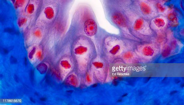 transitional epithelium--lining the urinary bladder, 250x - transitional epithelium stock pictures, royalty-free photos & images