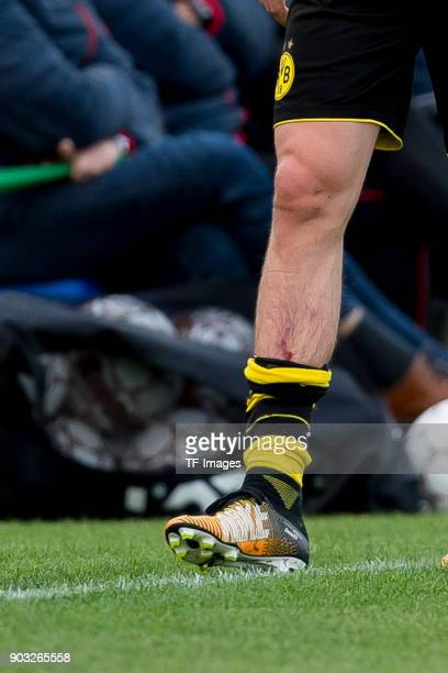 Erik Durm of Dortmund leaves the field injured during the Friendly match between Borussia Dortmund and SV Zulte Waregem at Estadio Municipal de...