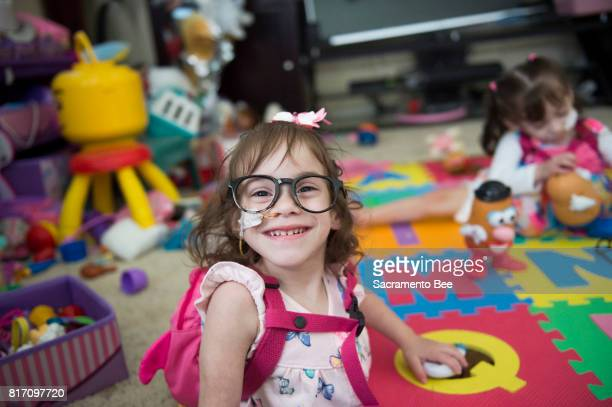 Erika Sandoval wears toy glasses while playing with Mr Potato Head at home in Antelope Calif Wednesday June 14 along with her formerly conjoined twin...