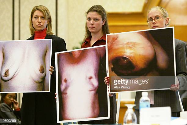 Erin Hiemstra Beth Nichols and Elizabeth Santoro of the National Center for Policy Research for Women Families hold post surgical photos of breasts...