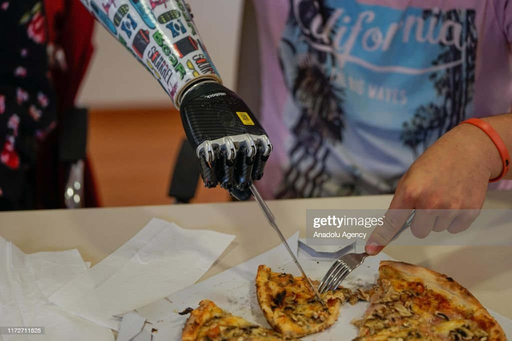 Bosnian youth hold on to life with his prosthetic hand : News Photo