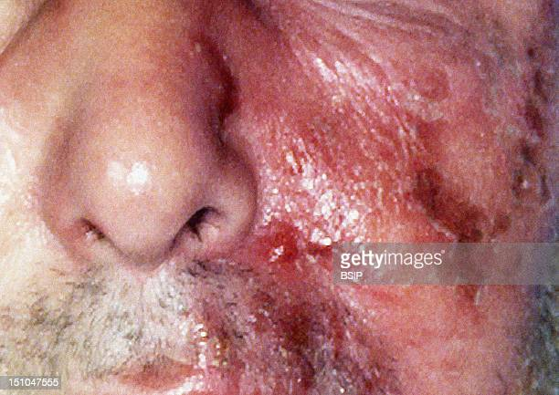 Erysipelas A Contagious Infectious Skin Disease Characterized By Painful Swelling Redness And Hardened Raised Plaques It Is Caused By Streptococci...