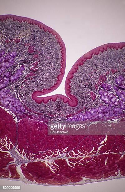 Esophagus-mucosa, submucosa, muscularis,adventitia