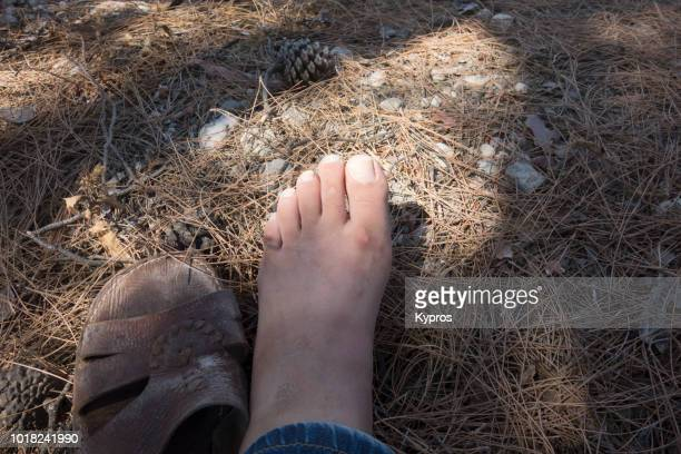 Europe, Greece, 2018: View Of Man Sitting In Forest With Custom Made Leather Sandals (Camel Skin, North African)