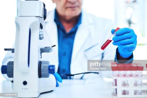 every sample has a big story to tell - bioquímico imagens e fotografias de stock