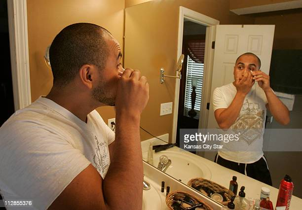 Every two hours Jose Vega uses ointment to help his right eye lined with two rows of stitches heal from surgery The cost of the ointment and the...