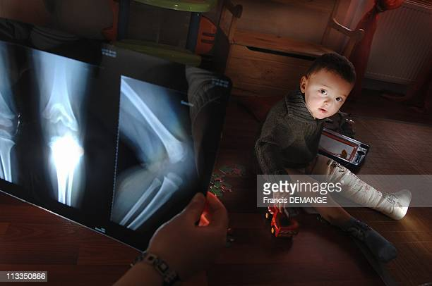 Exclusive Nosocomial Disease Victims In Buhl France In March 2007 The 3 yearold Roman baby wearing a plaster to his left leg for 3 weeks Romain was...