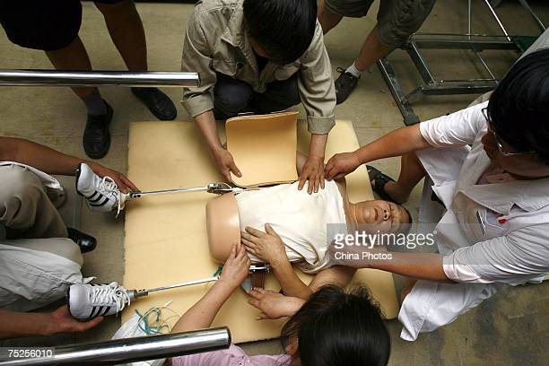 Experts at the China Rehabilitation Research Center install an artificial abdominal cavity and legs for Peng Shuilin on July 6 2007 in Beijing China...