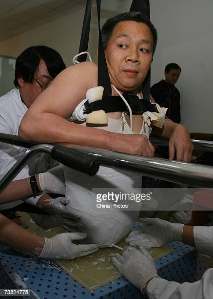 Experts of China Rehabilitation Research Center prepare to install an artificial abdominal cavity as the underprop for artificial legs to Chinese man...