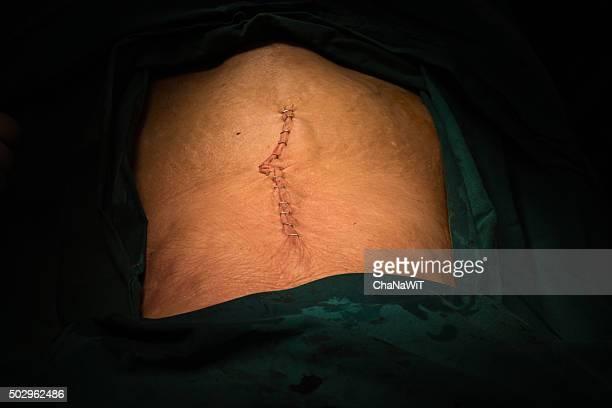 explore laparotomy - surgery stitches stock photos and pictures