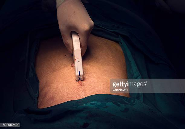 explore laparotomy - suture stock photos and pictures