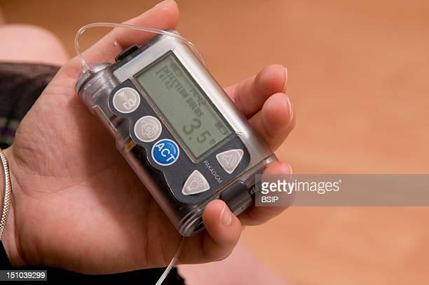 External Insulin Pump