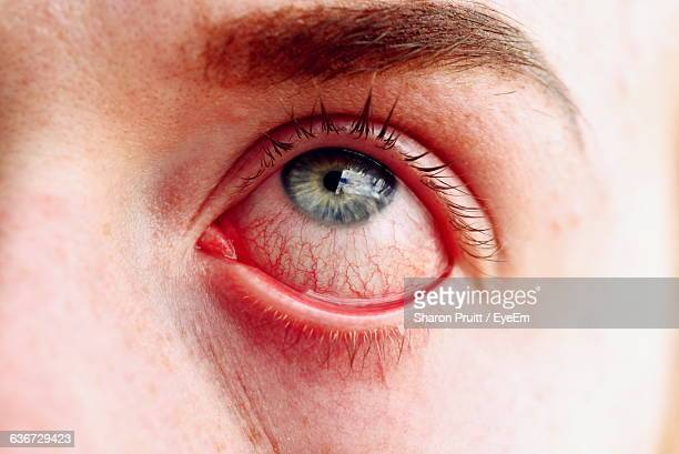 extreme close-up of person stretching eye - conjunctivitis stock pictures, royalty-free photos & images