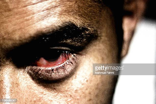 eye with conjunctivitis - conjunctivitis stock pictures, royalty-free photos & images