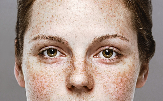 Eyes woman Young beautiful freckles woman face portrait with healthy skin 949009458