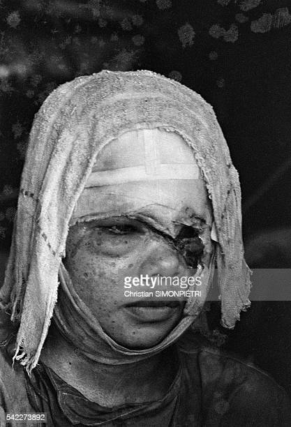 Face of a Vietnamese girl burned by napalm following an American bombing during the Vietnam War