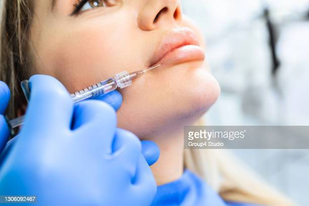 facial aesthetics surgery treatment - lips stock pictures, royalty-free photos & images