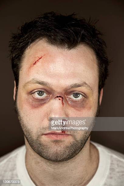 facial injuries - wounded stock photos and pictures