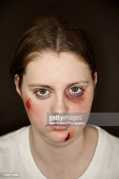 facial injuries - black eye stock pictures, royalty-free photos & images