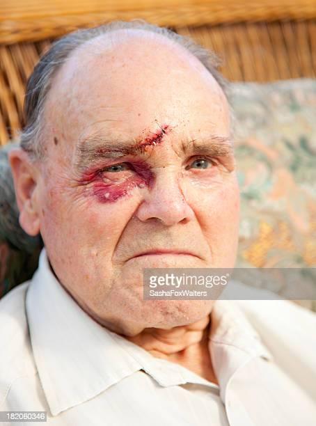 facial injury after assault - beaten up face stock photos and pictures