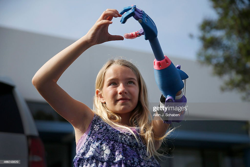 Girl Receives Limb Created By 3D Printer : News Photo