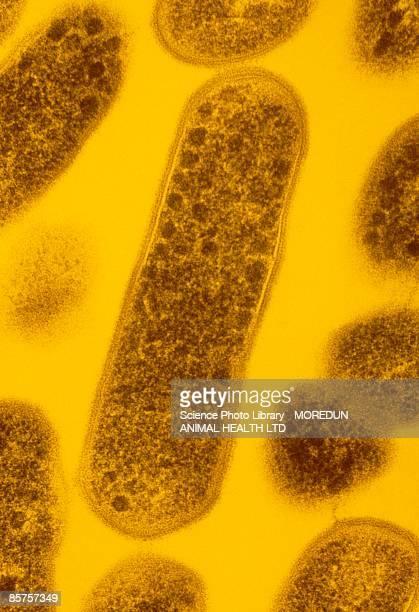 False-color transmission electron micrograph