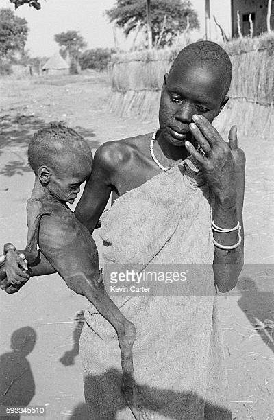 Famine victims in a feeding center
