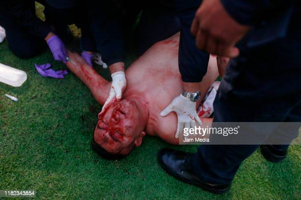 Fan of San Luis bleeds on the ground when fans of San Luis and Queretaro started a fight between them in the stands during the 14th round match...