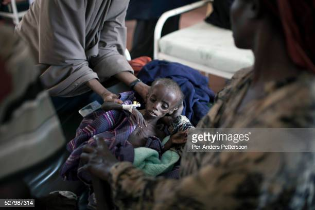 Farhiyo Yussuf age 3 lies severely malnourished in a hospital in the IFOR refugee camp on July 28 2011 outside Dadaab Kenya She weighs only 46...