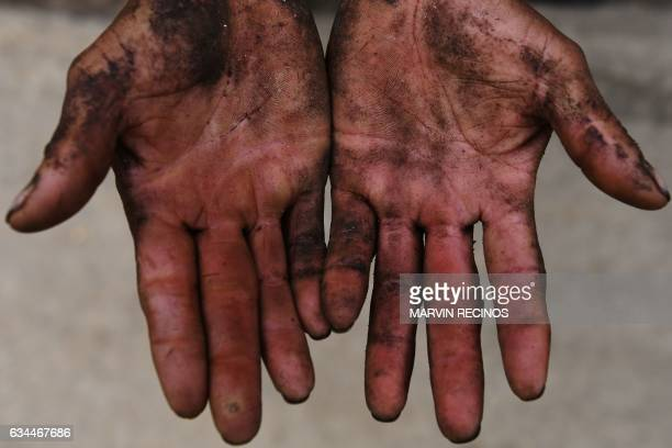A farmer shows his hands after a working day at a coffee crop near Lempa's river source in Olopa 213 kilometers east of Guatemala City on February 3...