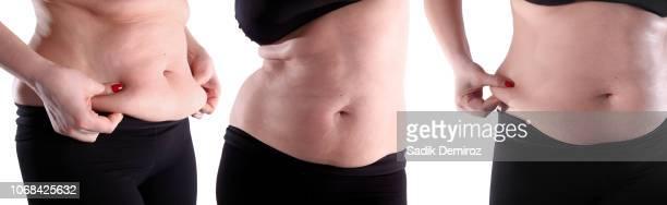 fat belly woman over white background - abdominoplastia imagens e fotografias de stock
