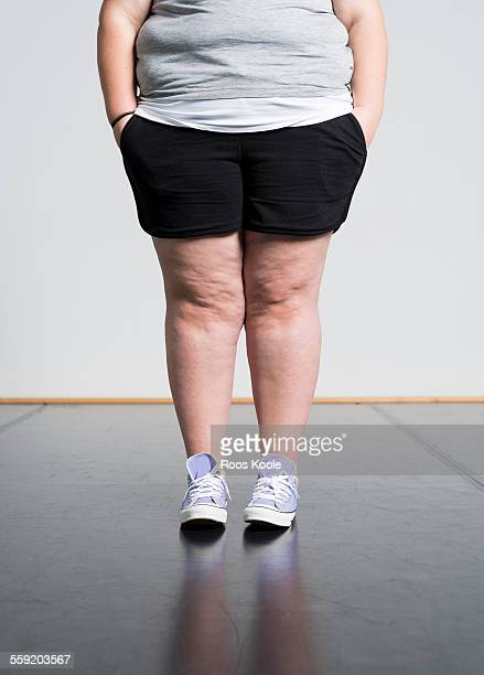 fat legs - chubby legs stock photos and pictures