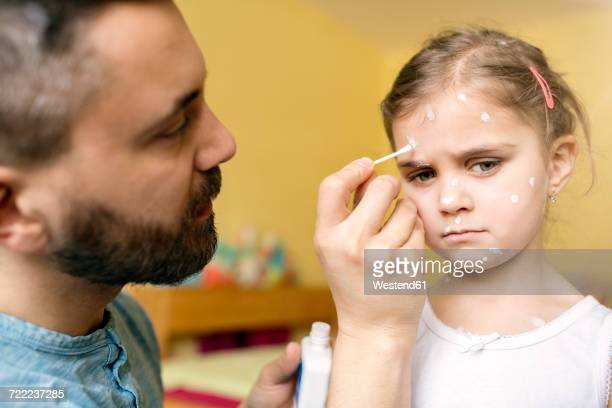 father at home caring for daughter having chickenpox - vattkoppor bildbanksfoton och bilder