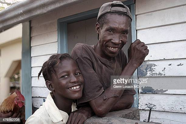 Father his son stand in front of their shack. A rooster is in the background they are smiling father has a keloid Santa fe San Pedro Dominican...