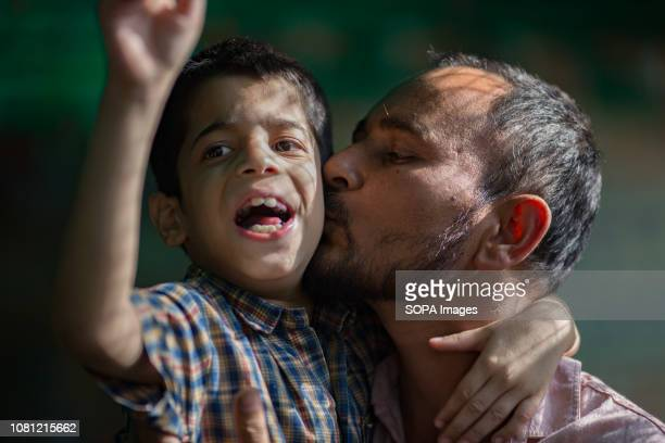 A father seen embracing his son at Chingari Rehabilitation Center Chingari cares for victims of the Bhopal Gas Disaster The Bhopal Gas Disaster was a...