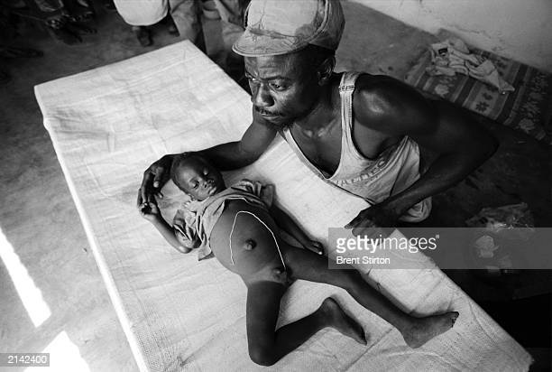 A father watches over his 20monthold son who has just had a guinea worm extracted from his testicles February 2003 in a rural clinic in Ghana Guinea...