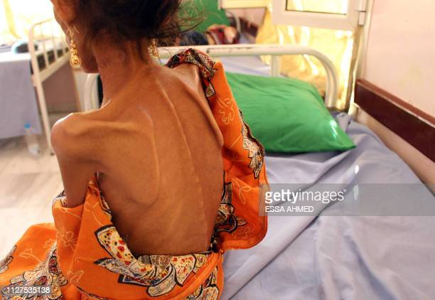 Fatima Hadi, a 12-year-old displaced Yemeni girl suffering from acute malnutrition, lies on a bed at a hospital in Yemen's northwestern Hajjah...