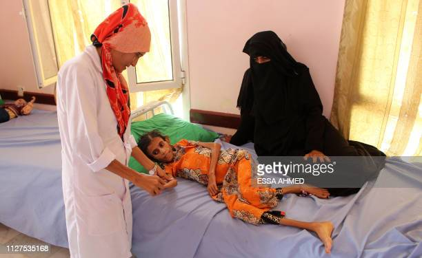 Fatima Hadi, a 12-year-old displaced Yemeni girl suffering from acute malnutrition, is treated at a hospital in Yemen's northwestern Hajjah province,...