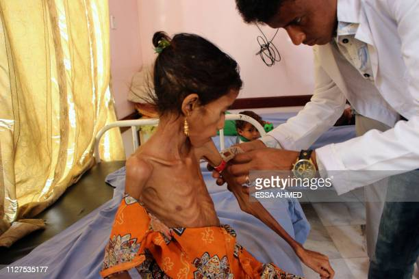 Fatima Hadi, a 12-year-old displaced Yemeni girl suffering from acute malnutrition, is measured at a hospital in Yemen's northwestern Hajjah...