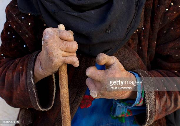 Fatima suffering from the advanced stages of leprosy has disfigured hands and toes at a home for the handicapped sponsored by the Helping Hands...
