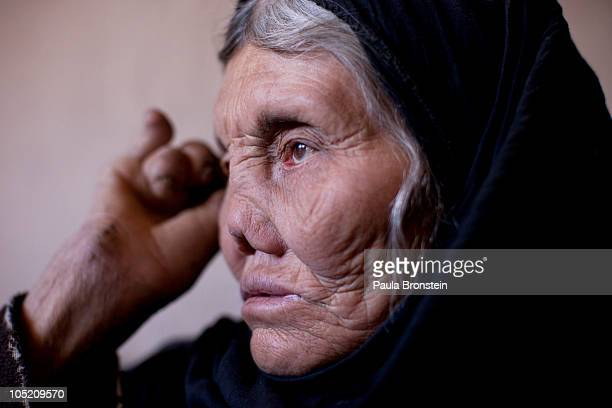 Fatima suffers from the advanced stages of leprosy at a home for the handicapped sponsored by the Helping Hands Scandinavian charity October 12 2010...