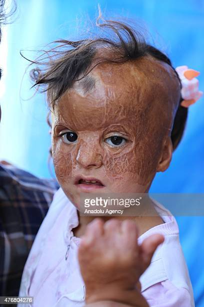 Fatma Husen El Ali whose face was burned off seven months ago when Assad regime forces carried out barrel bomb attacks on residential areas in Idlib...