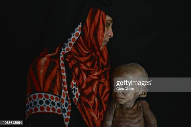 Fawaz Abdullah 18 months old suffers from severeacute malnutrition His skin condition is also one of the many symptoms of malnutrition His parents...