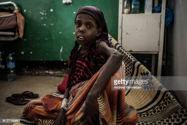 Faysa Hasan sits on the floor of emergency ward of Borama Regional Hospital in Somalia on March 21 2017 Faysa was admitted to the hospital weighing...