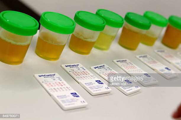 Feature Doping Urinproben