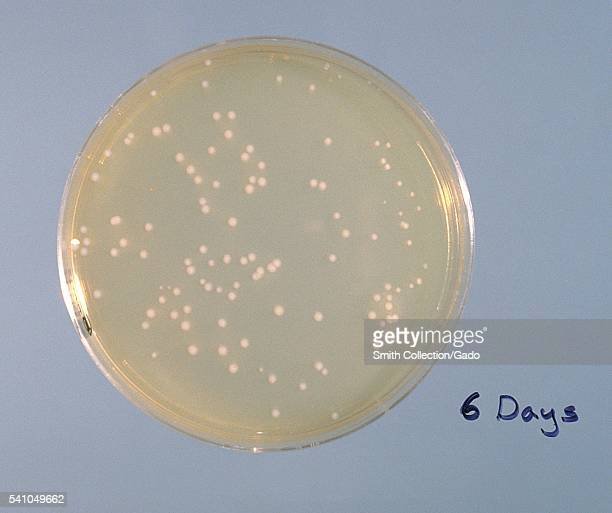 FeeleyGorman agar plate culture of Legionella pneumophila 1978 Here is colonial growth on day 6 at 36 degrees C using a 1/5000 dilution of a standard...