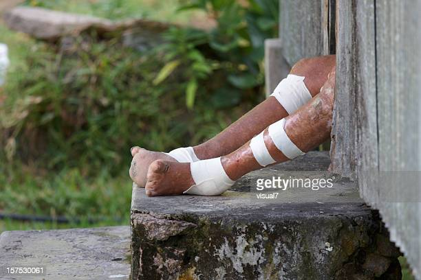 feet of a leper - leprosy stock pictures, royalty-free photos & images